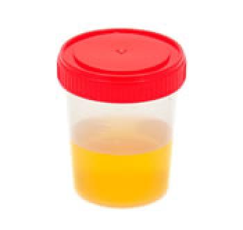 emoglobina urina